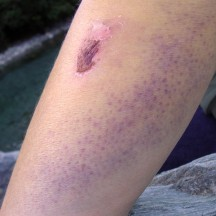"""6 days after the fall. Blood filled my sweat glands to cause the """"spotty"""" look?"""